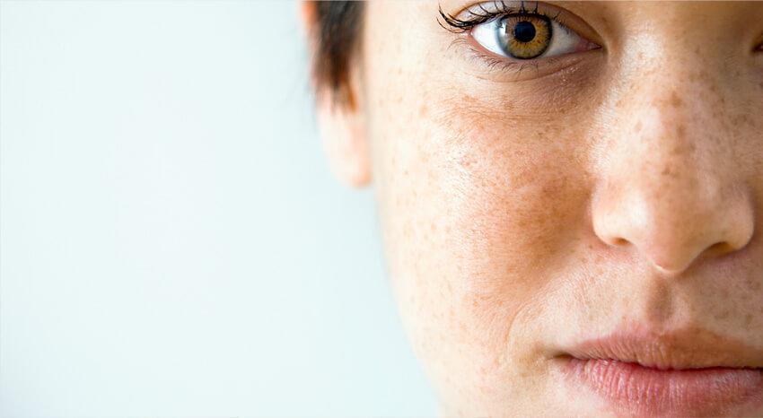 acne under graviditet